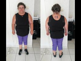 Avant perte de poids