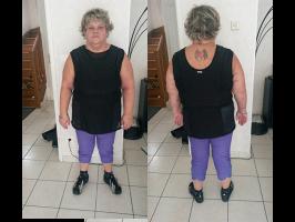 Après perte de poids